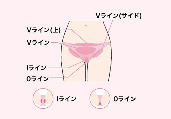 【キレイモ】VIO