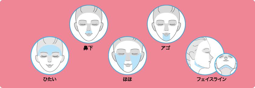 【エピレ】フェイス・5脱毛2回プラン